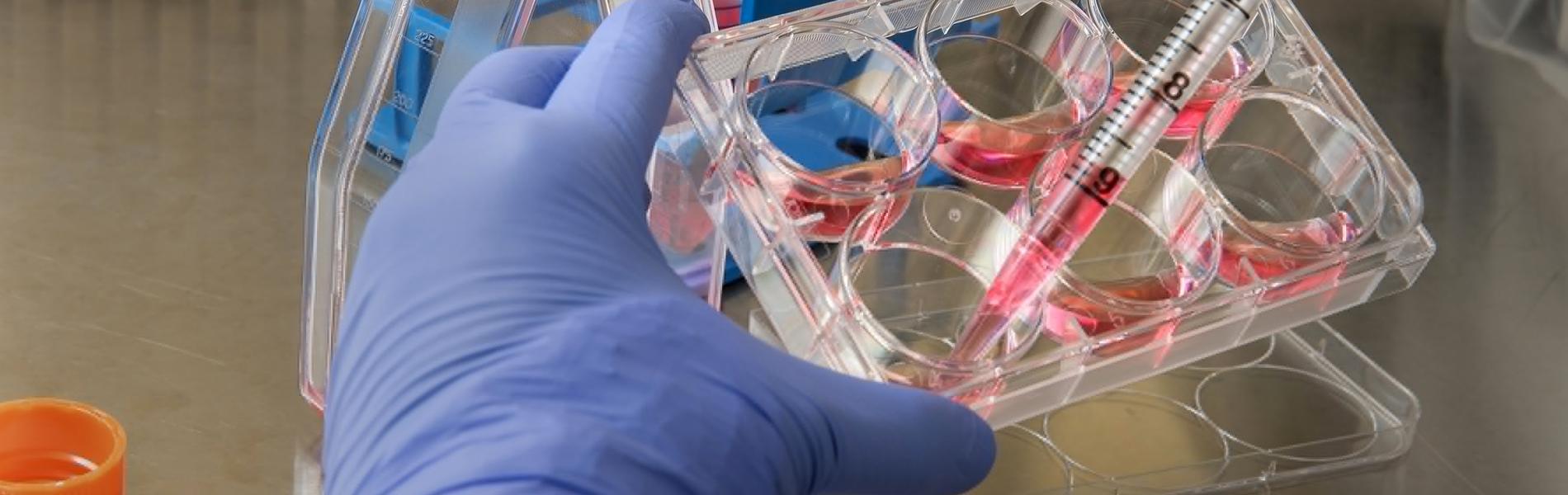 close de uma mão com luva hospitalar manipulando materiais de laboratório