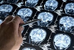 Projeto da UFF alia psiquiatria à inteligência artificial