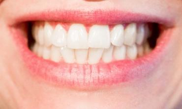 imagem: sorriso
